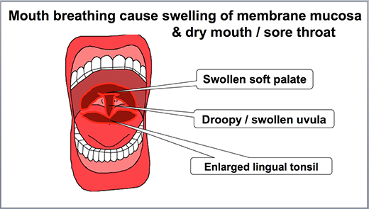 cause of sore throat is when the throat inflamed with bacteria due to  shortage of saliva, mucous membranes are destroyed and the nerve is  stimulated,